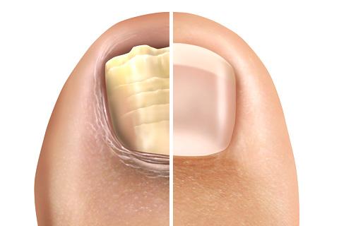 爪の再生のイメージ