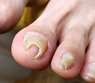 巻き爪状態の写真