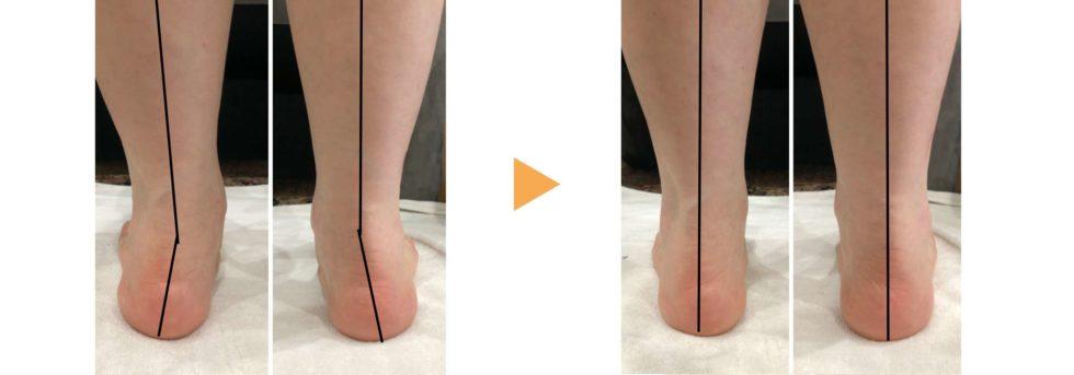 Aさん(外反母趾・ウノの目でお悩み)の後ろから見た脚・足