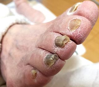 爪の肥厚の症状