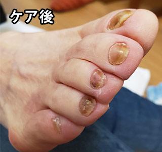 爪の肥厚 施術後